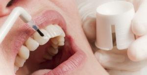 Фторирование зубов в Москве