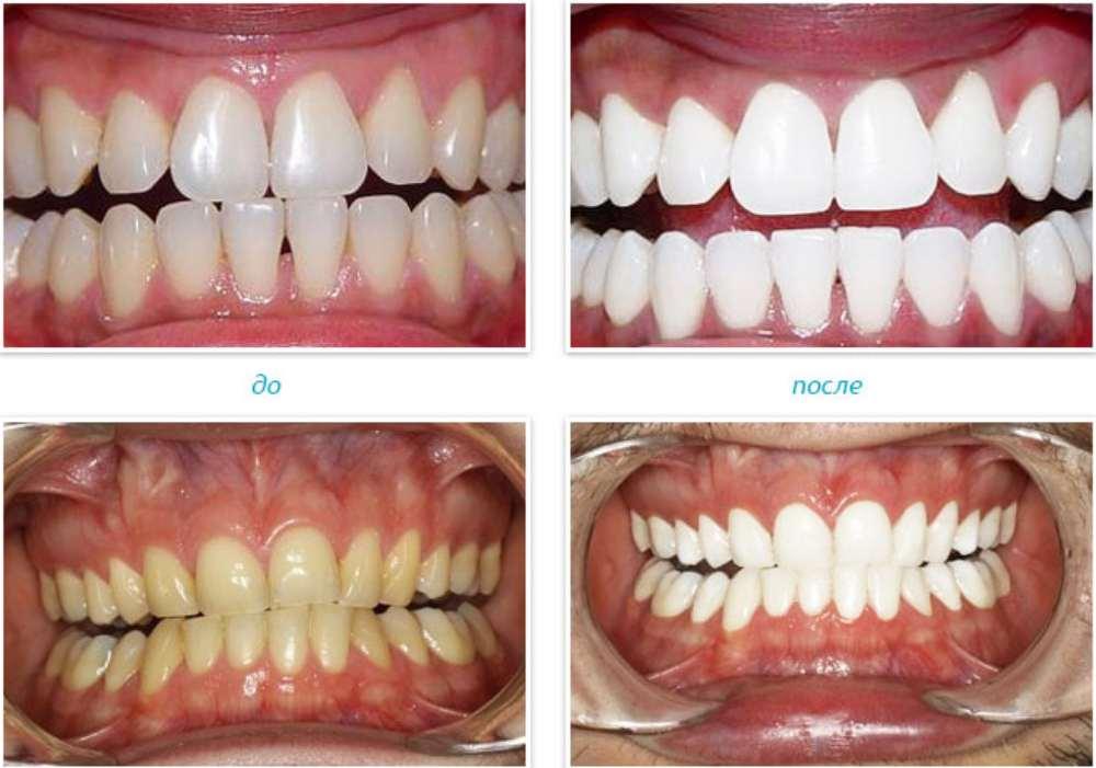 ОТбеливание зубов в клинике